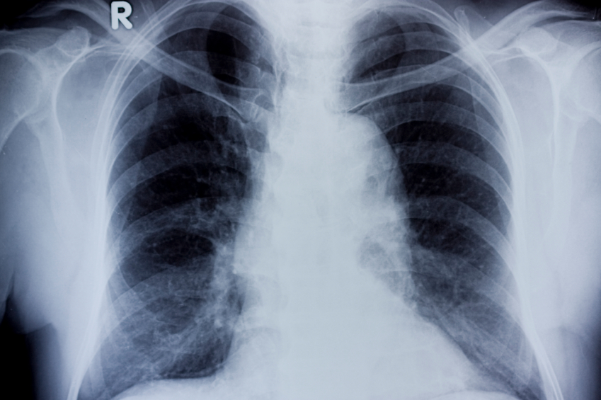 هل التهاب الرئة معدي وكيف يمكن تجنب انتقاله مجلتك