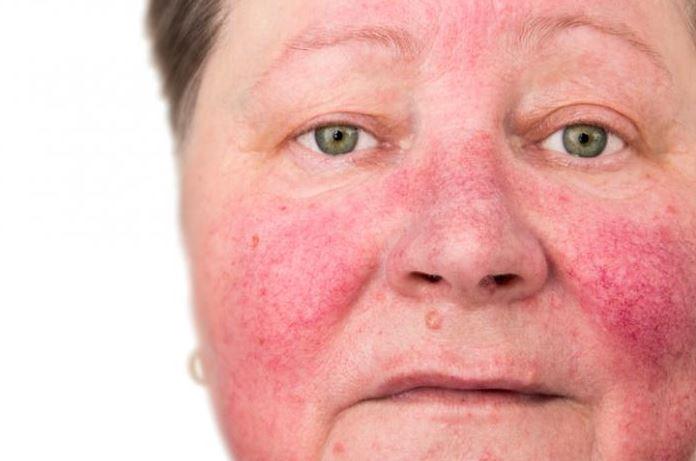 أمراض المناعة الذاتية الجلدية .. أمراض نادرة وأخرى خطيرة