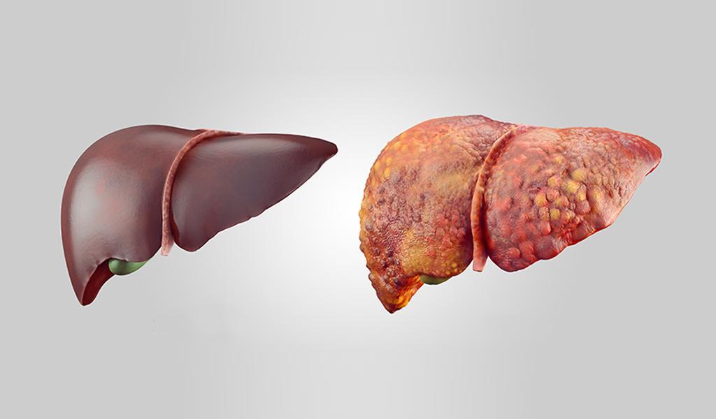 التليف الكبدي