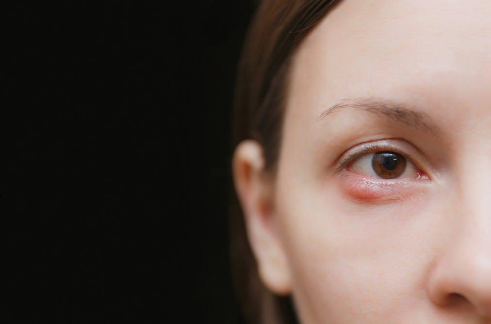 علاج الكيس الدهني في العين بالثوم