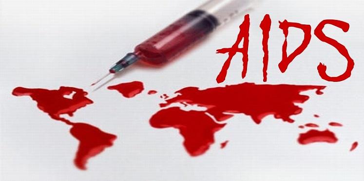 آثار الايدز