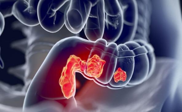 غير قابل للقراءة موثوق حديقة جراسيك ماهي اعراض سرطان القولون عند الرجال Comertinsaat Com
