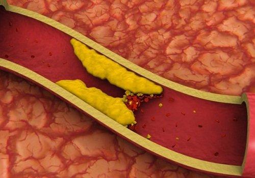 علاج ارتفاع الكولسترول بالأعشاب