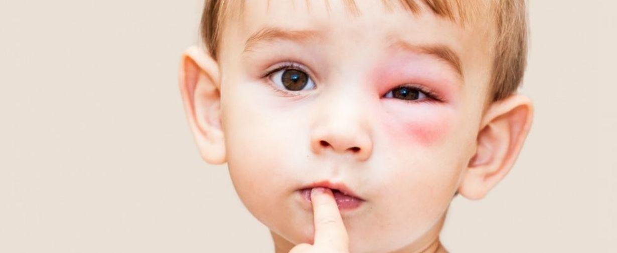 أسباب وأعراض و علاج التهاب العين عند الأطفال