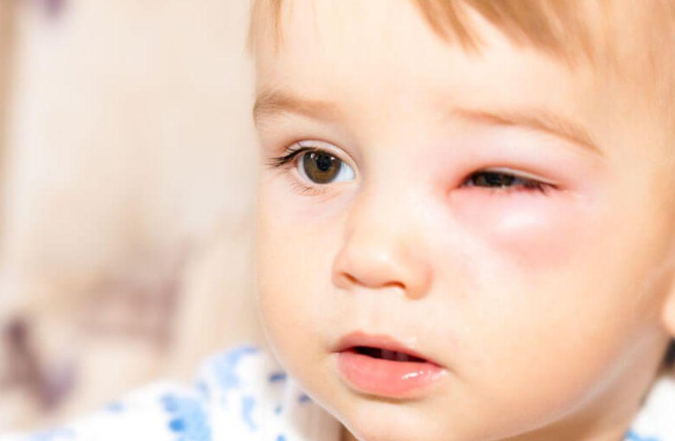 أعراض التهاب العين عند الأطفال