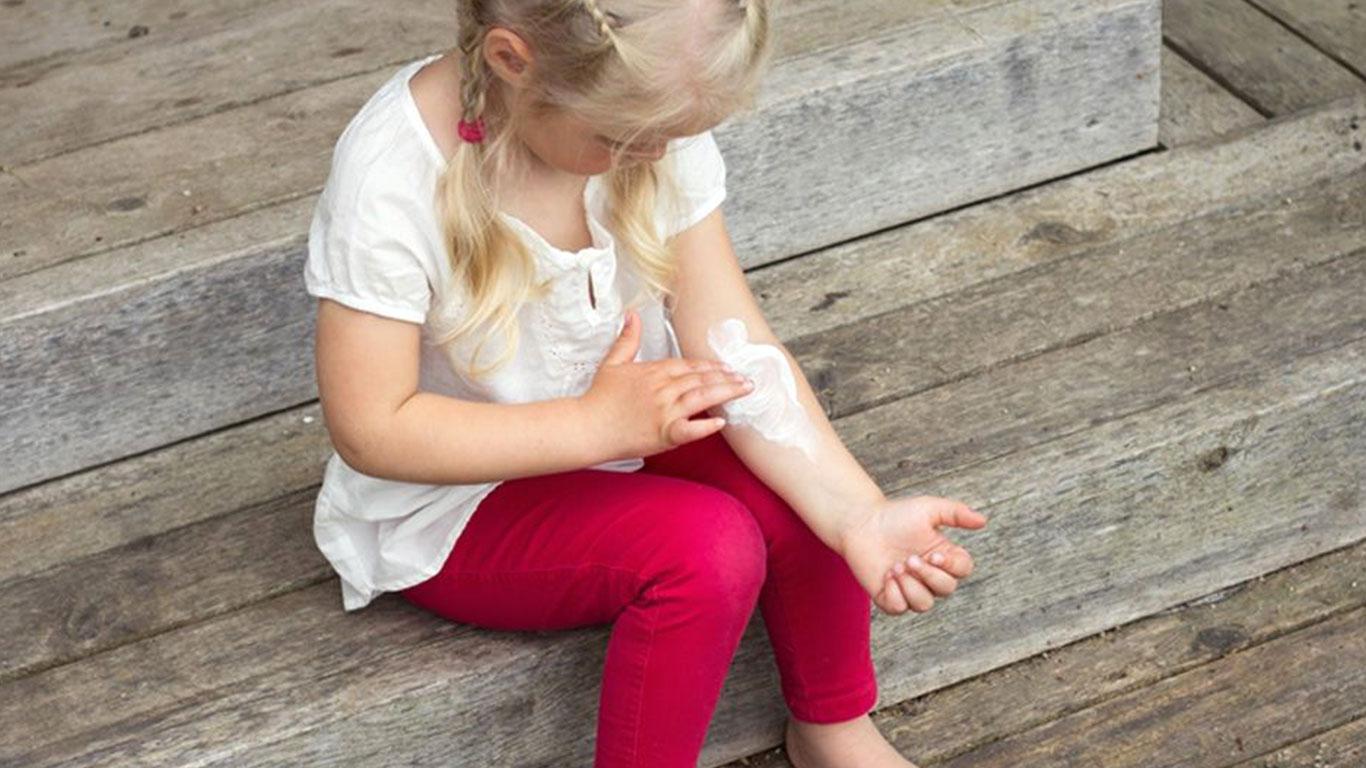 علاج أكزيما الأطفال طبيعيًا
