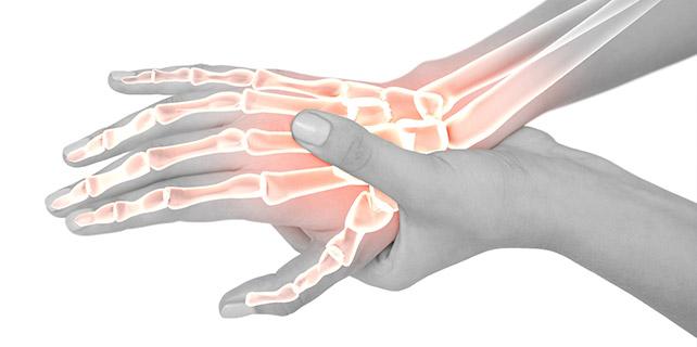 علاج التهاب أوتار الإبهام
