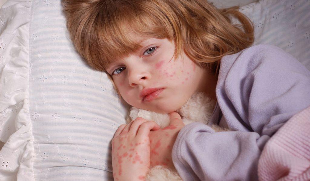 حساسية الجلد عند الأطفال من الأكل مجلتك