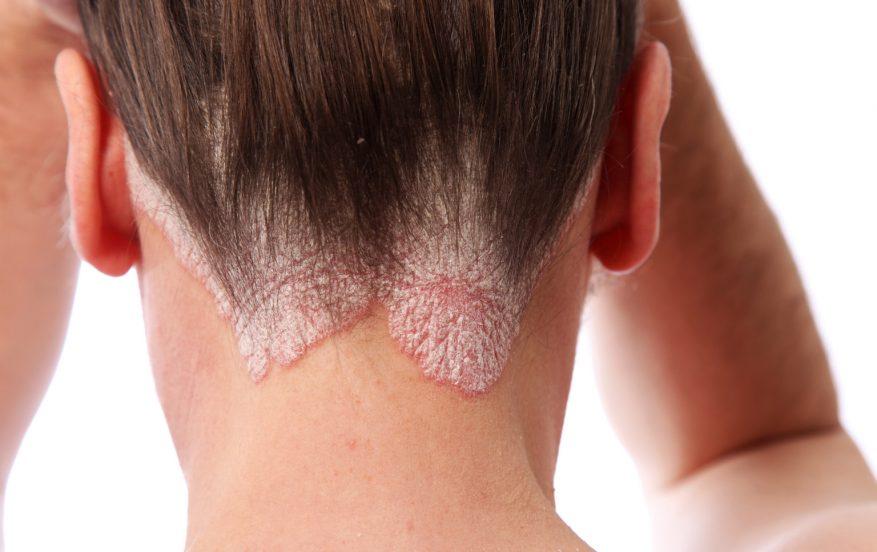 علاج أكزيما الشعر