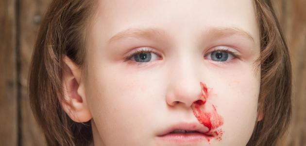 علاج الرعاف عند الأطفال