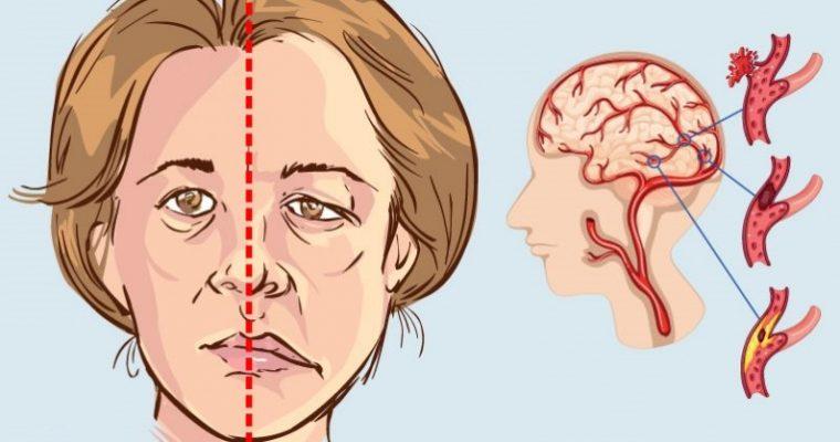 عدم وصول الدم للمخ