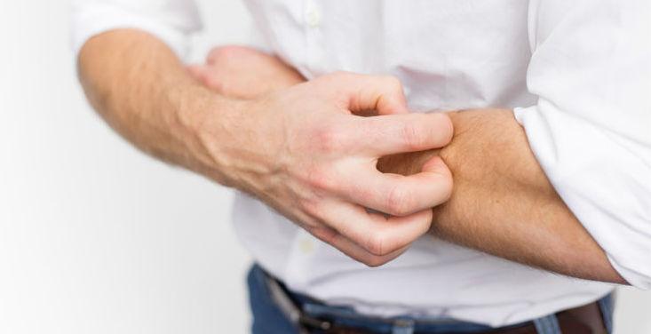 علاج جفاف الجلد والحكة
