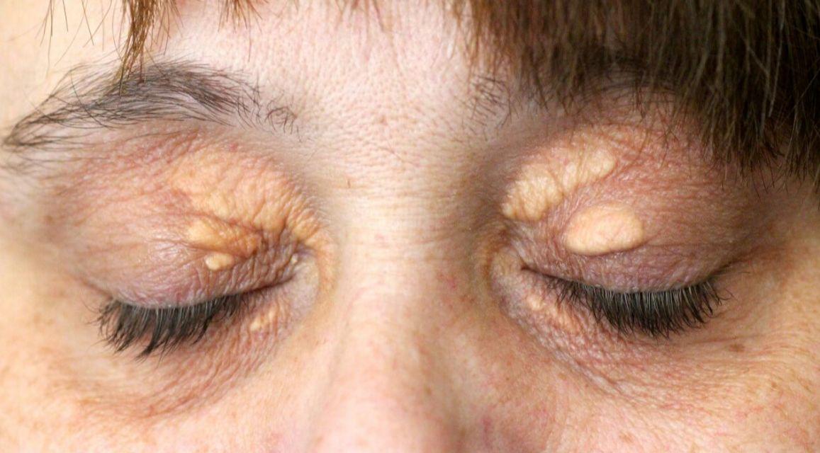 هل دهون تحت العين تشكل حطر؟