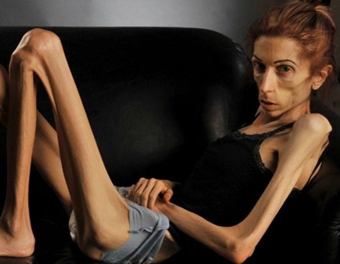 مرض فقدان الشهية العصبي عندما ترغب وتعمل على خسارة الوزن إلى أن تختفي أنت