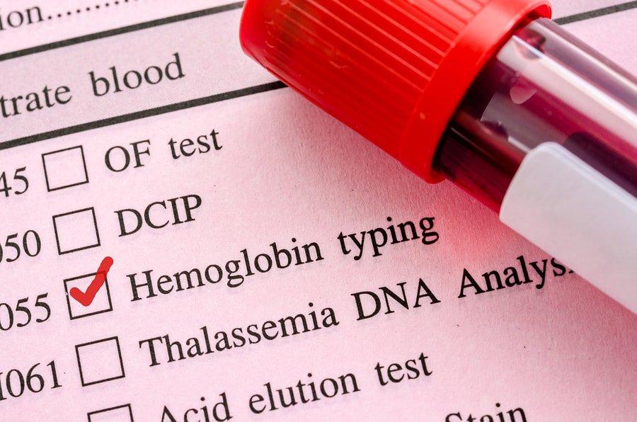 اختبار الهيموغلوبين