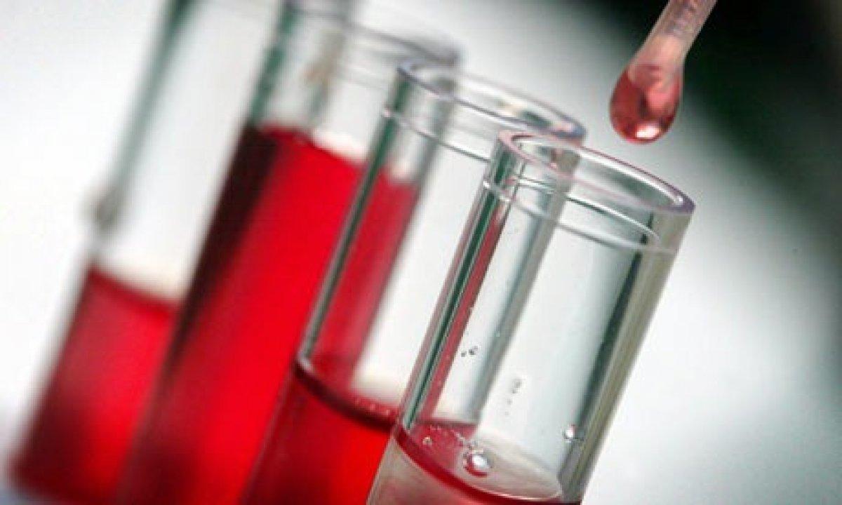 أسباب نقص كريات الدم الحمراء