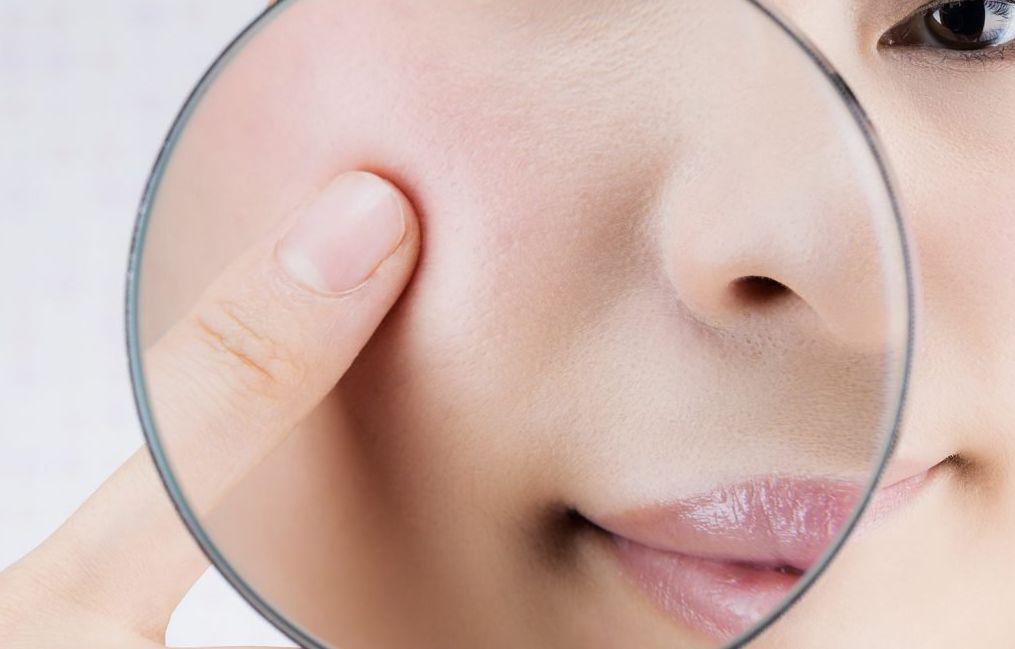 أسباب ظهور مسامات الوجه