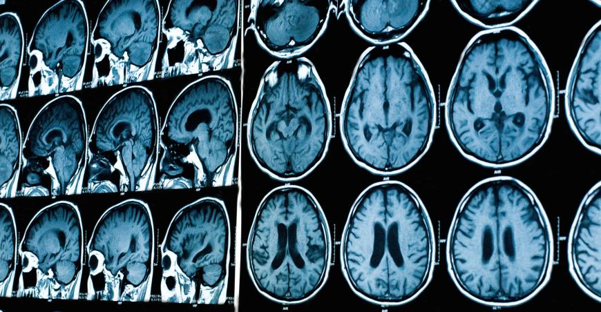 الرنين المغناطيسي للدماغ