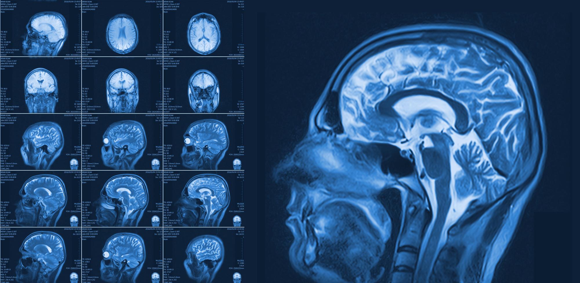 أشعة الرنين المغناطيسي على المخ
