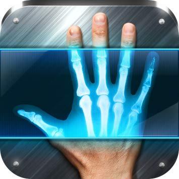 الأشعة السينية 1