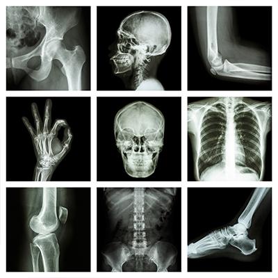 الأشعة السينية 2