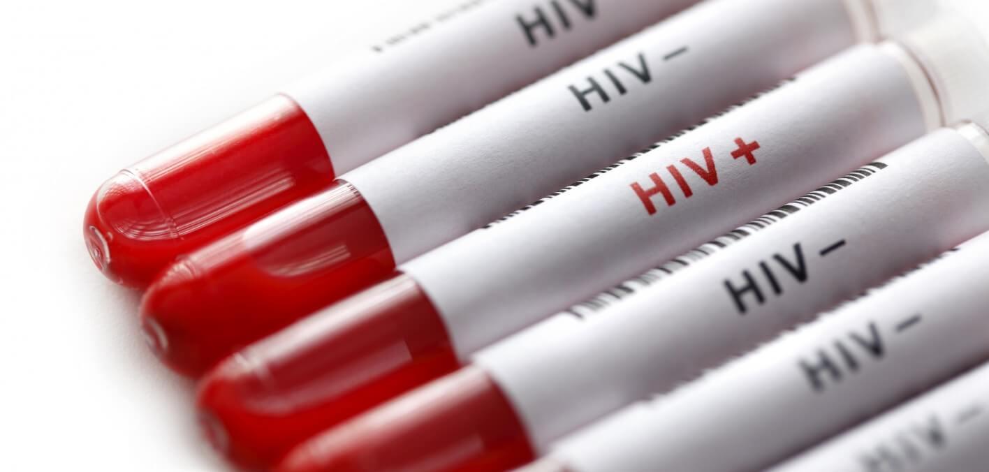 أعراض الإيدز بعد الاصابة مباشرة