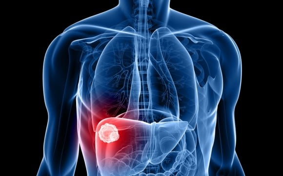 كم يعيش مريض سرطان الكبد