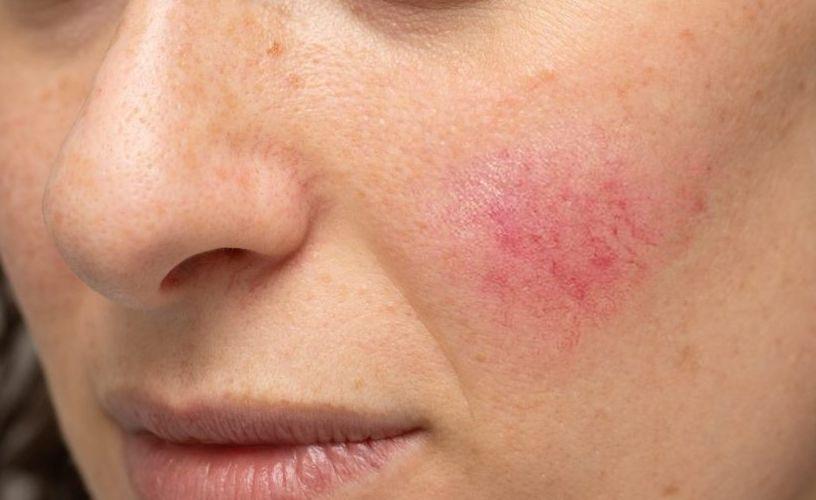 هل تعاني من حرارة في الوجه مع الاحمرار؟ إليك الأسباب مع طريقة العلاج