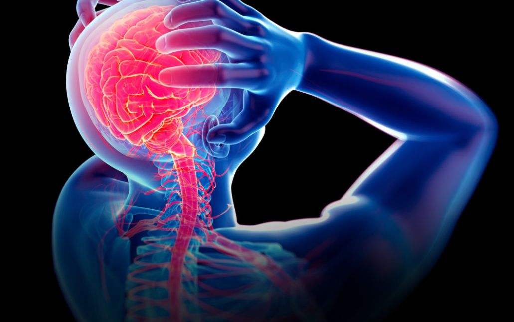 أسباب آلام الرقبة والرأس من الخلف الناتجة عن مشاكل الرأس والصداع