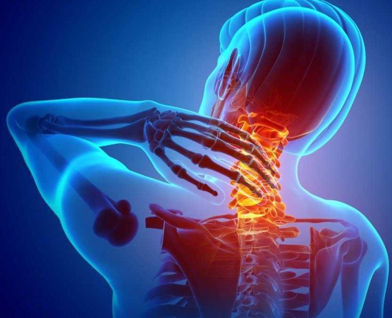 أسباب آلام الرقبة والرأس من الخلف الناتجة عن مشاكل الرقبة