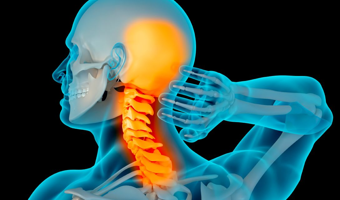كيف تحدث آلام الرقبة والرأس من الخلف معًا؟