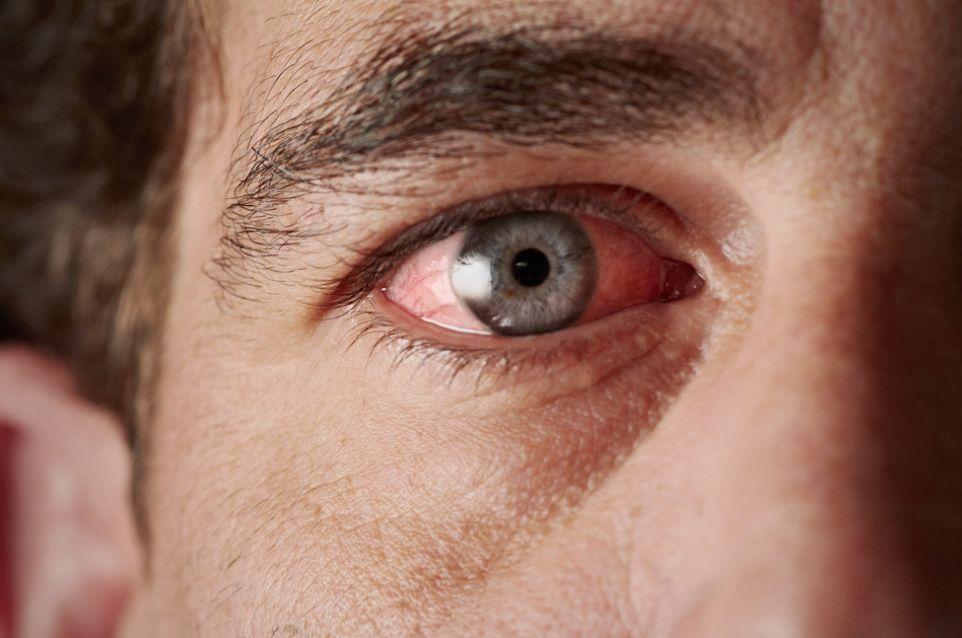 حساسية العيون ..