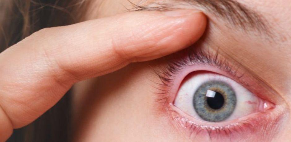 ما هي حساسية العيون ؟