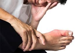 اعراض مرض النقرس