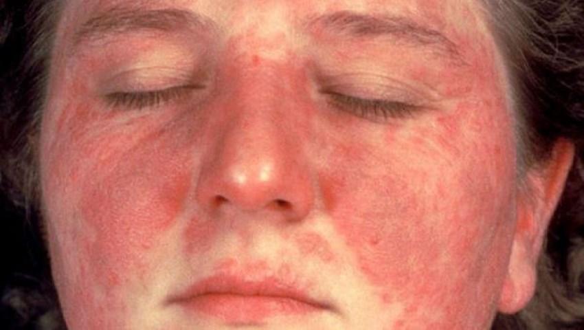 علاج مرض الذئبة الحمراء وأسبابه وأعراضه مجلتك