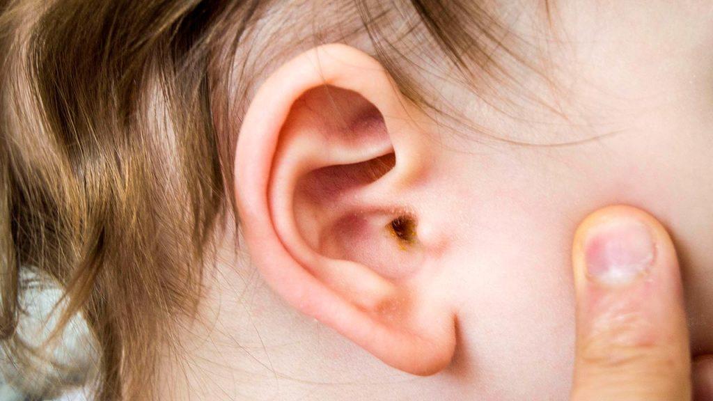 أعراضرالتهاب الأذن