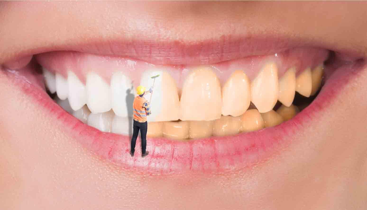 تلميع الأسنان