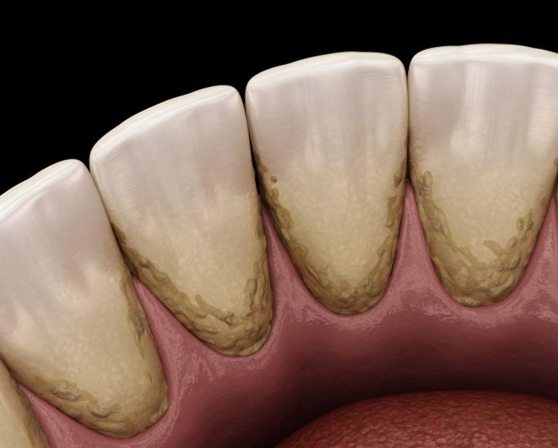 ما هي أسباب تراكم الجير على الأسنان وأضراره وطريقة التعامل معه؟