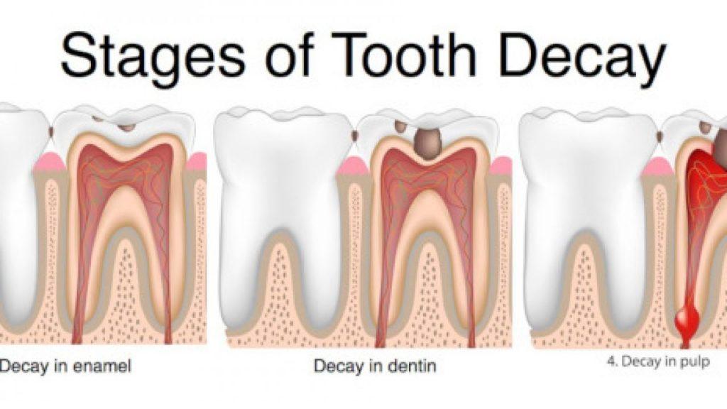 مراحل تسوس الأسنان