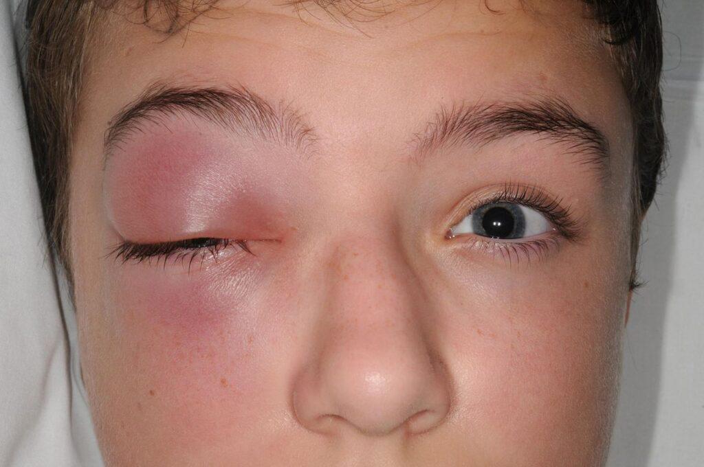 أعراض احمرار العين عند الأطفال