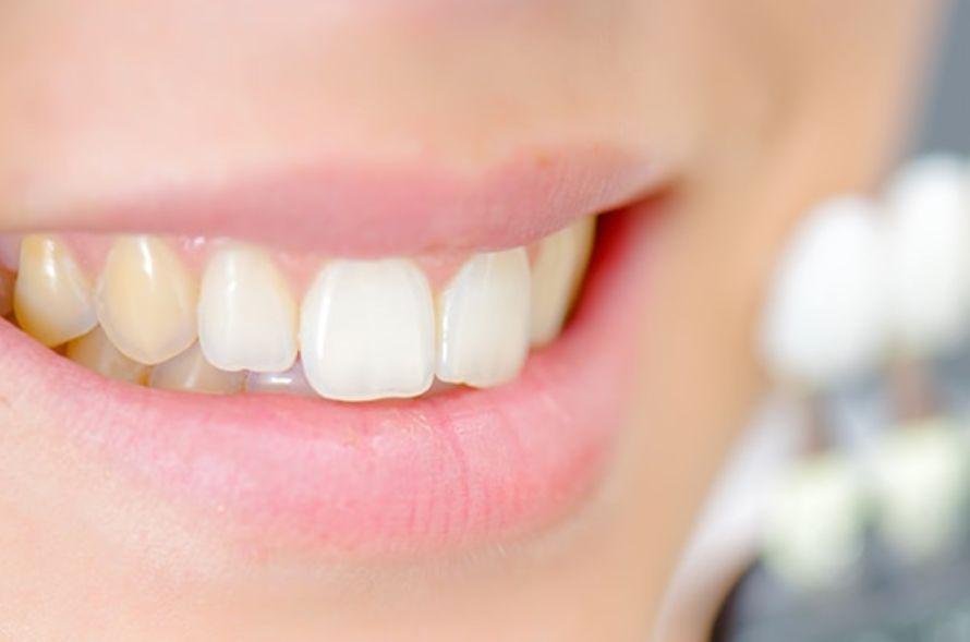 منقول Dental Fluorisis تصبغ كواليس طب الأسنان Facebook