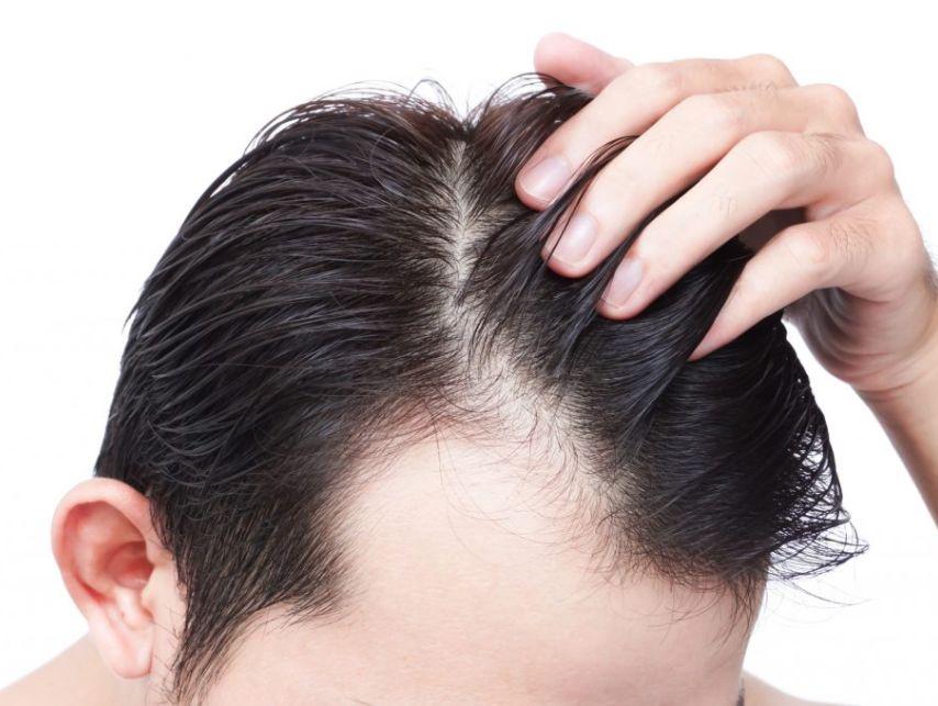تعليمات ما بعد زراعة الشعر ..