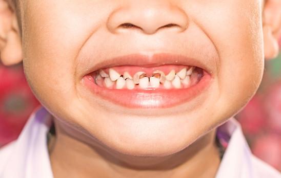 تخفيف ألم تسوس الأسنان عند الأطفال