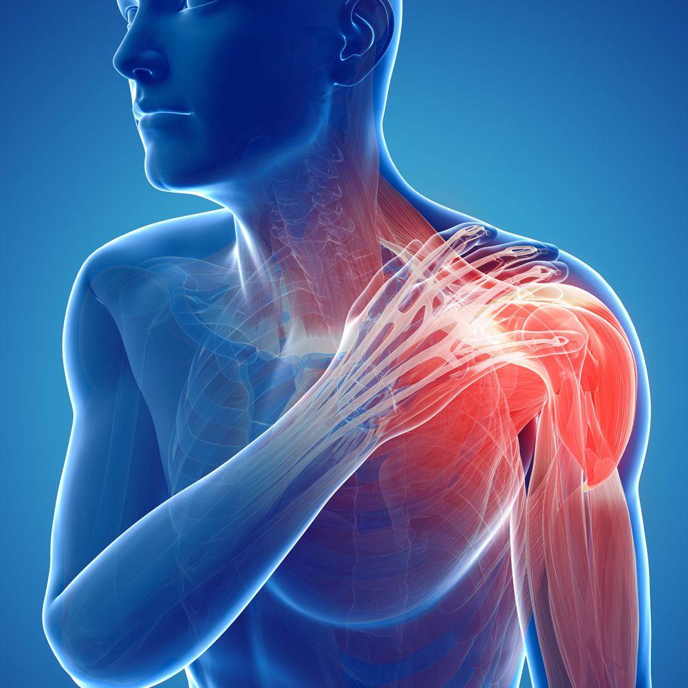علاج التمزق العضلي في الكتف