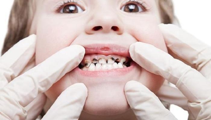 علاج تسوس الأسنان عند الأطفال في المنزل