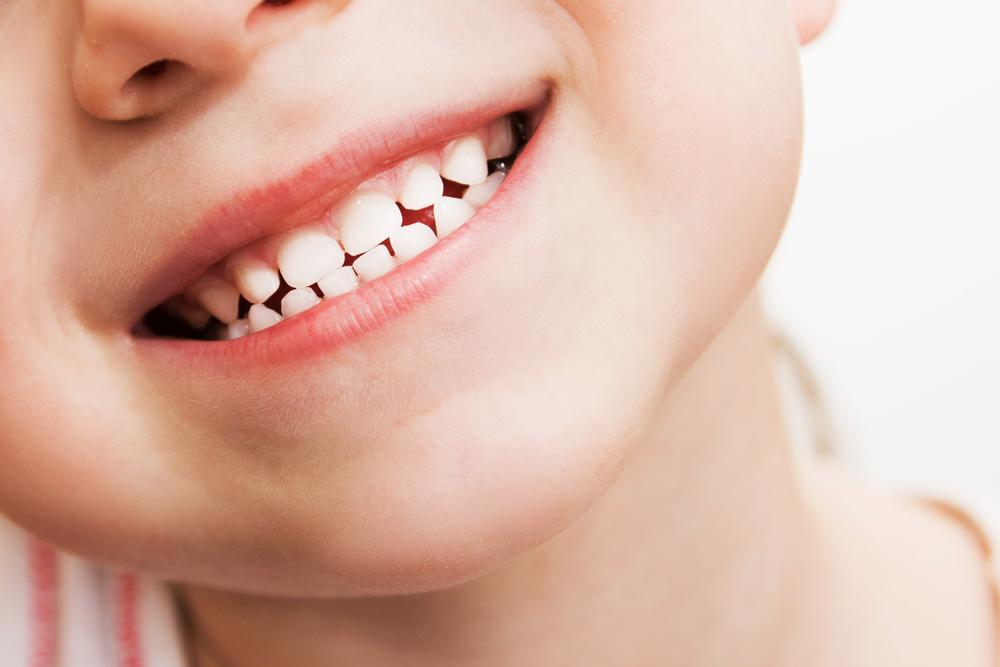 سقوط الاسنان اللبنية 1