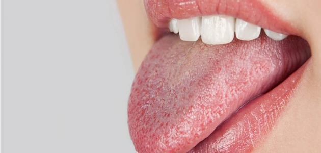 أسباب جفاف الفم واللسان والحلق