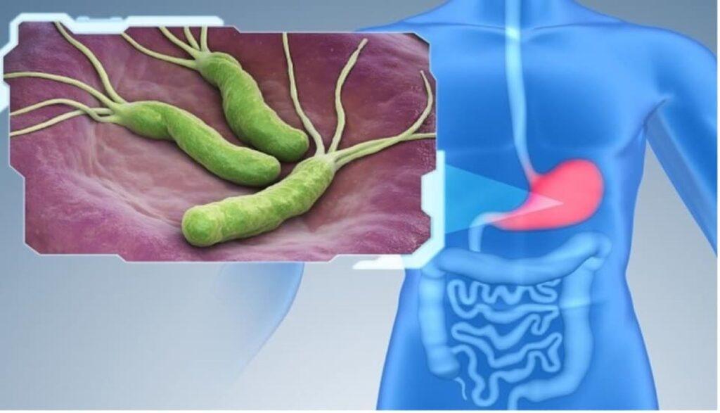أعراض أخرى لجرثومة المعدة