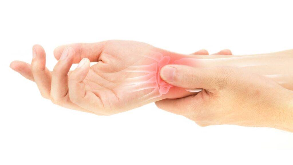 اختناق عصب اليد