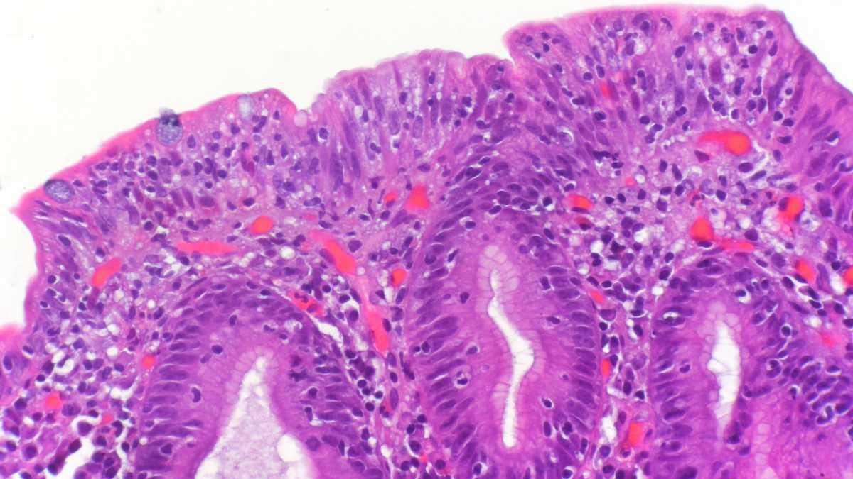 التهاب الأمعاء من أضرار الجلوتين